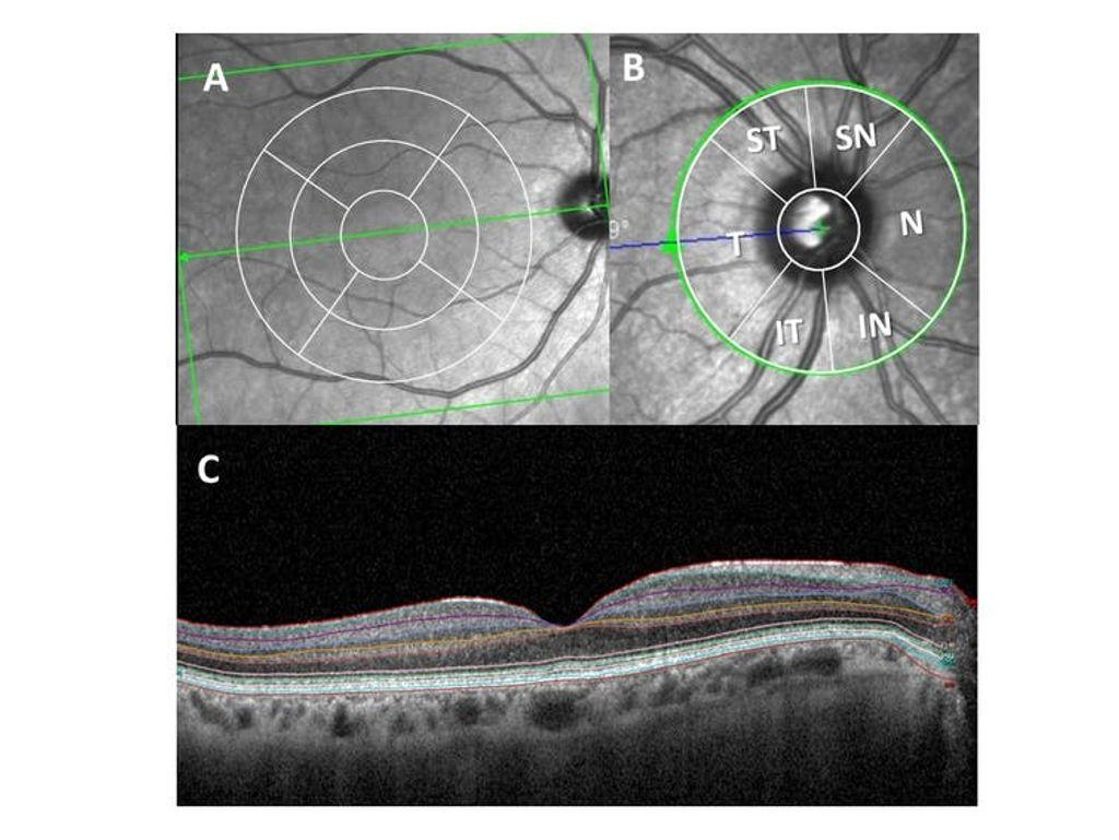 Examen de la retina con tomografía