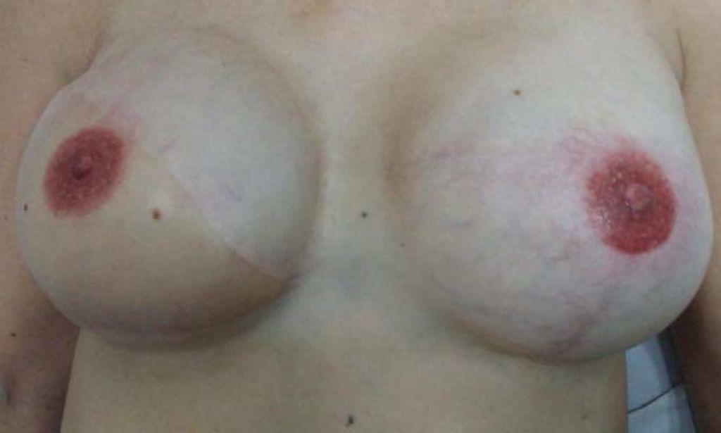Pechos tras el tatuaje
