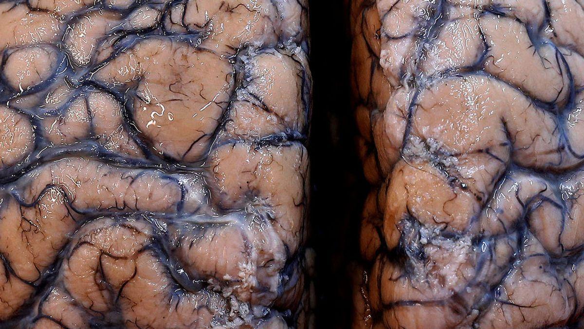 El coronavirus también nos destroza el cerebro, según científicos españoles
