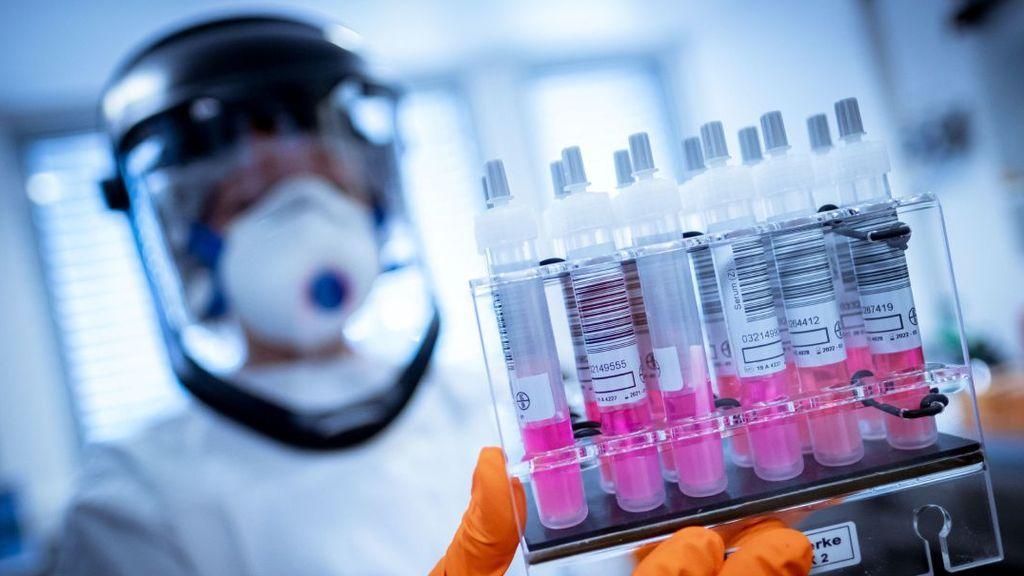 La vacuna de la Universidad de Oxford produce una fuerte respuesta inmune contra el COVID-19