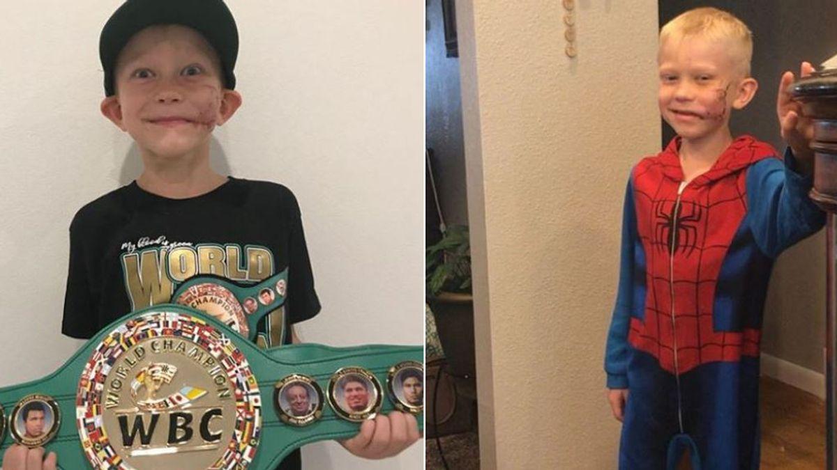 """Entregan el cinturón mundial de boxeo a un niño que salvó a su hermana del ataque de un perro: """"El más valiente"""""""