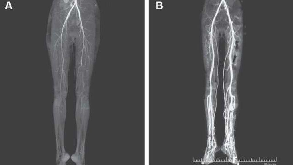 """Diagnostican a una mujer que sufre dolores abrasadores en las piernas con la enfermedad medieval del """"fuego sagrado"""""""
