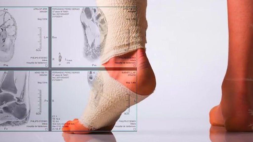 vendaje para un esguince de tobillo