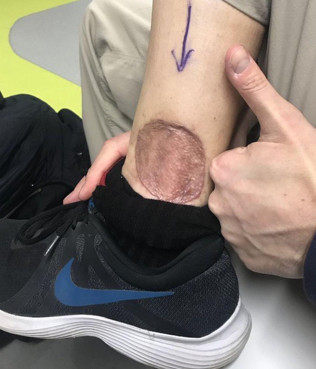 Descubre un hematoma en su pierna, no presta atención y resulta ser un cáncer agresivo