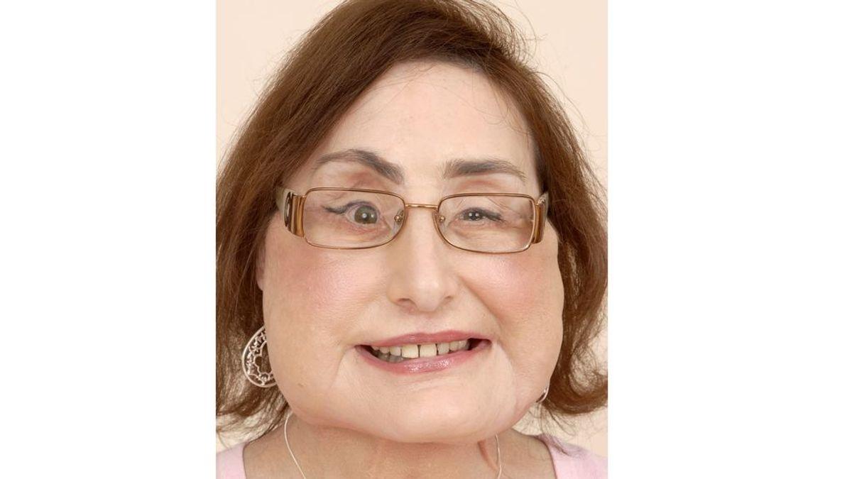 Muere Connie Culp, la primera mujer que recibió un transplante facial casi completo, a los 57 años