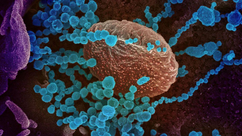 """Unos científicos de Estados Unidos descubren """"una de las cosas más extrañas del nuevo coronavirus"""""""