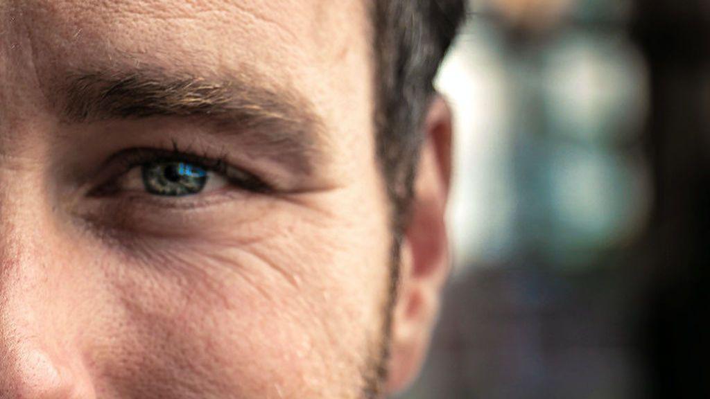 Tratamientos de medicina estética para hombres a partir de 45 años