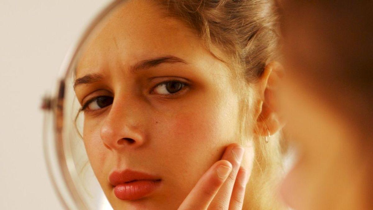Granos en la cara: lo que dicen de tu salud los diferentes tipos