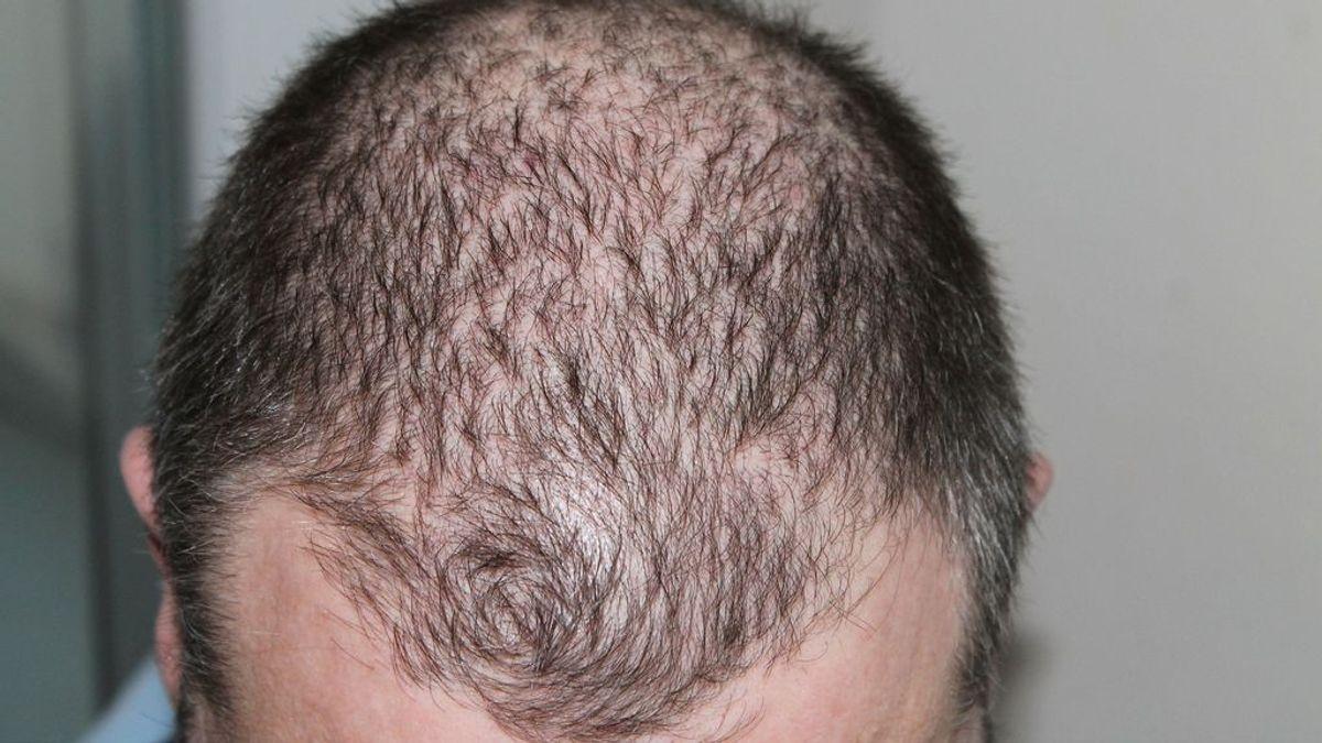Encuestas de infectados con coronavirus arrojan nuevos síntomas: pérdida del cabello, entre otros