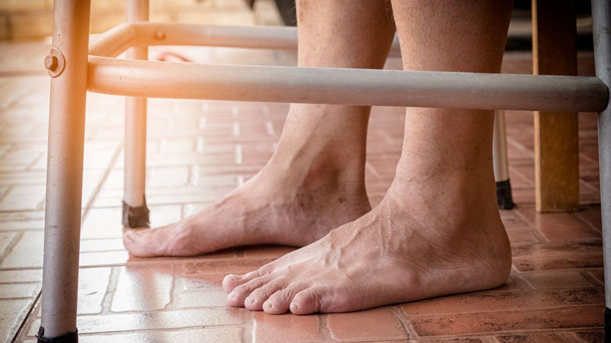 Complicaciones del pie diabético: de los síntomas a la importancia de detectarlo pasados los 45