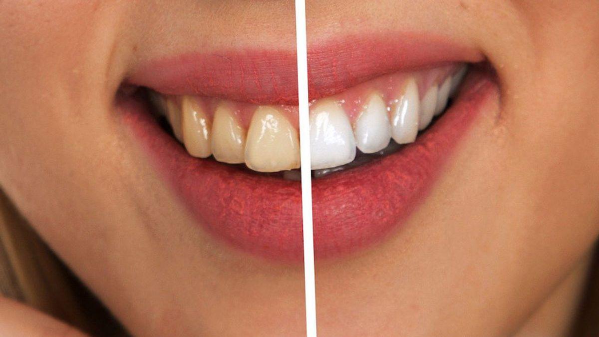 Todo lo que necesitas saber sobre el blanqueamiento dental