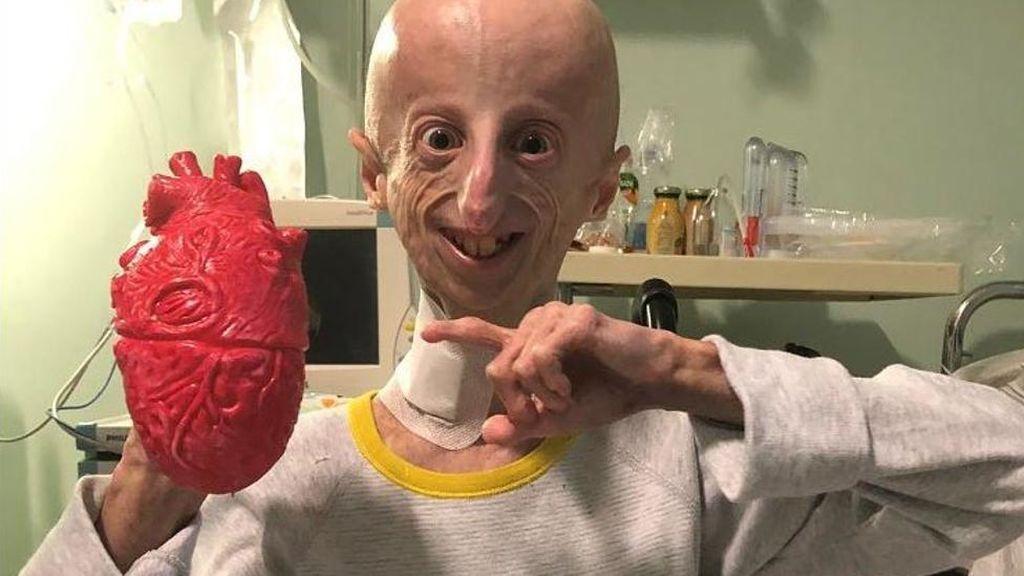 El biólogo molecular y enfermo de progeria, Sammy Basso