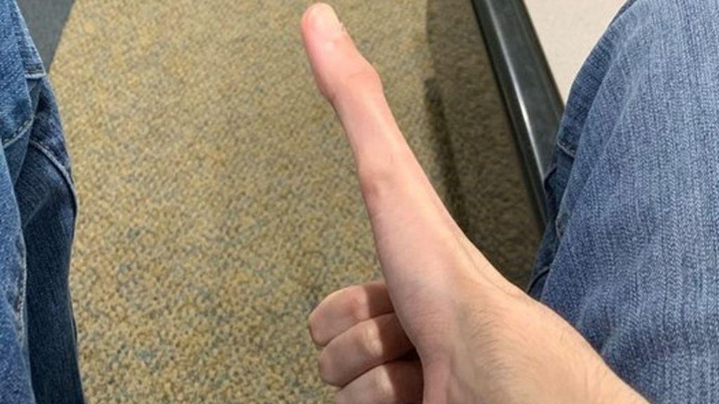 Un joven gana millones de seguidores por tener unos dedos pulgares larguísimos de 12 centímetros