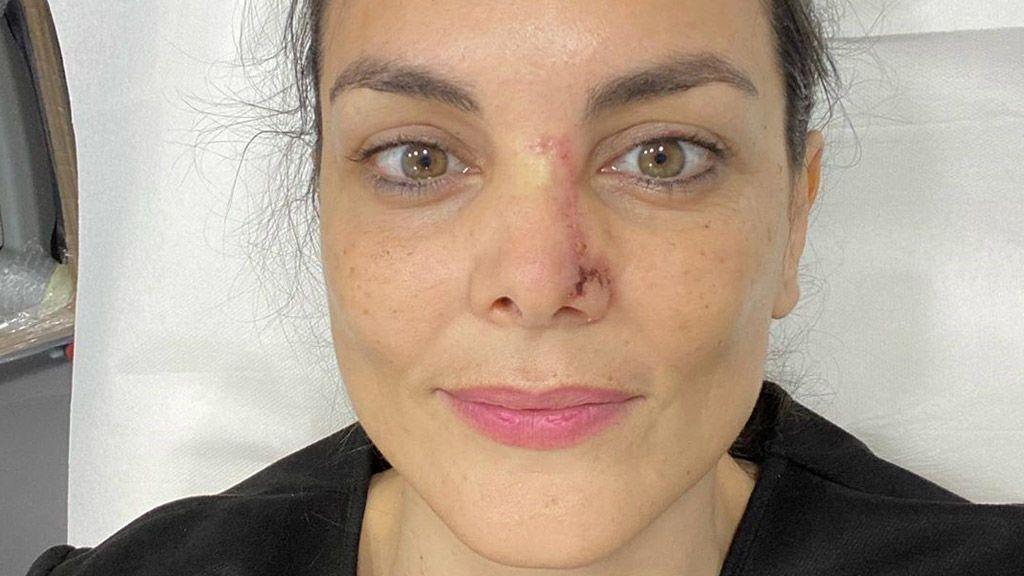 """Mónica Carrillo confiesa que le han detectado cáncer de piel en la nariz: """"En ocasiones la vida nos da zarpazos"""""""