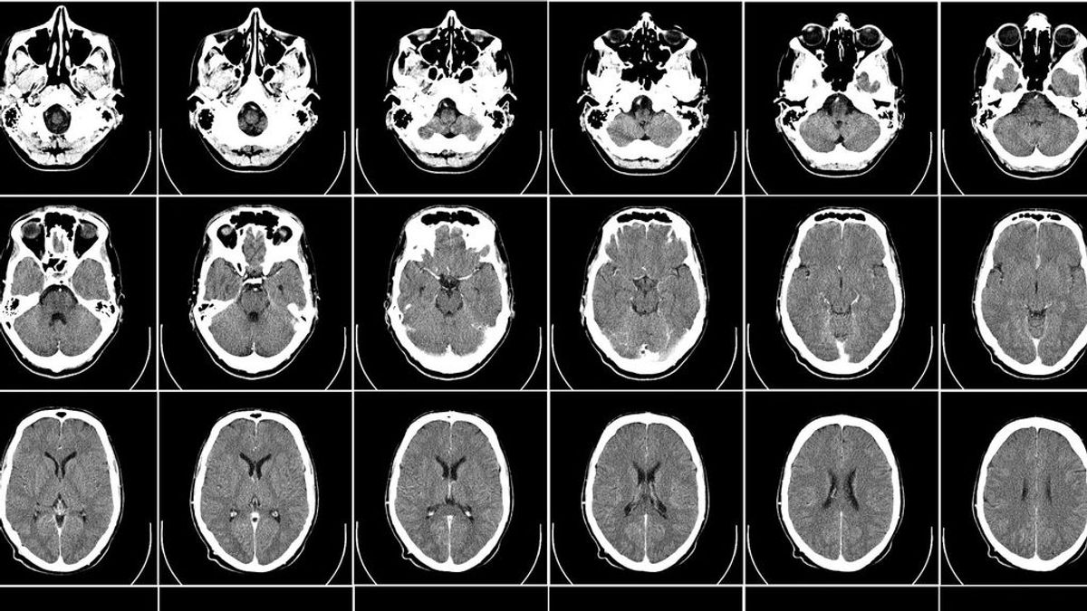 Encefalopatías, encefalitis y patologías neurovasculares: las dolencias neurológicas más comunes de la Covid-19