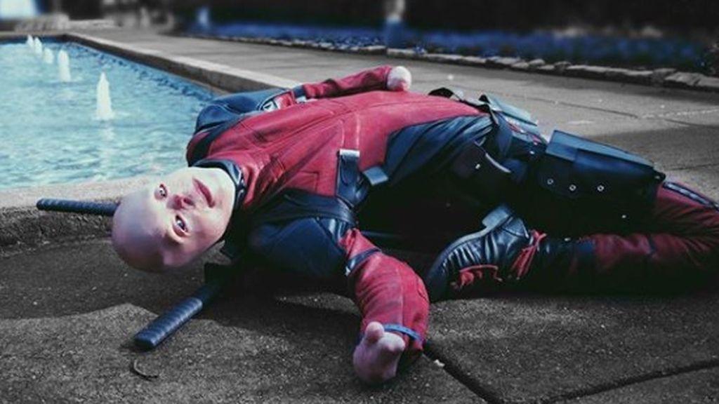 """Ryan Reynolds responde a un joven con quemaduras al que inspiró el personaje de Deadpool: """"Este soy yo"""""""