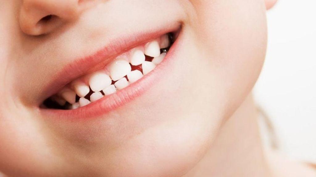 Gingivitis en niños, causas y tratamientos.