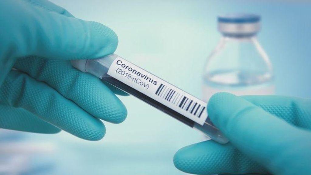 Andalucía comienza a usar un test exprés que detecta el coronavirus en 15 minutos