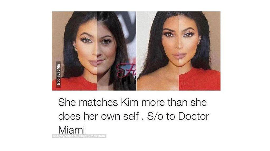 El brutal cambio de Kim en los últimos años... ¿demasiada cirugía?