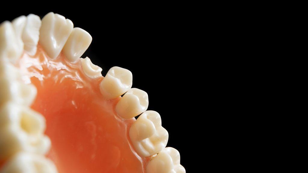 La rotura de dientes se multiplica: el otro efecto colateral del coronavirus