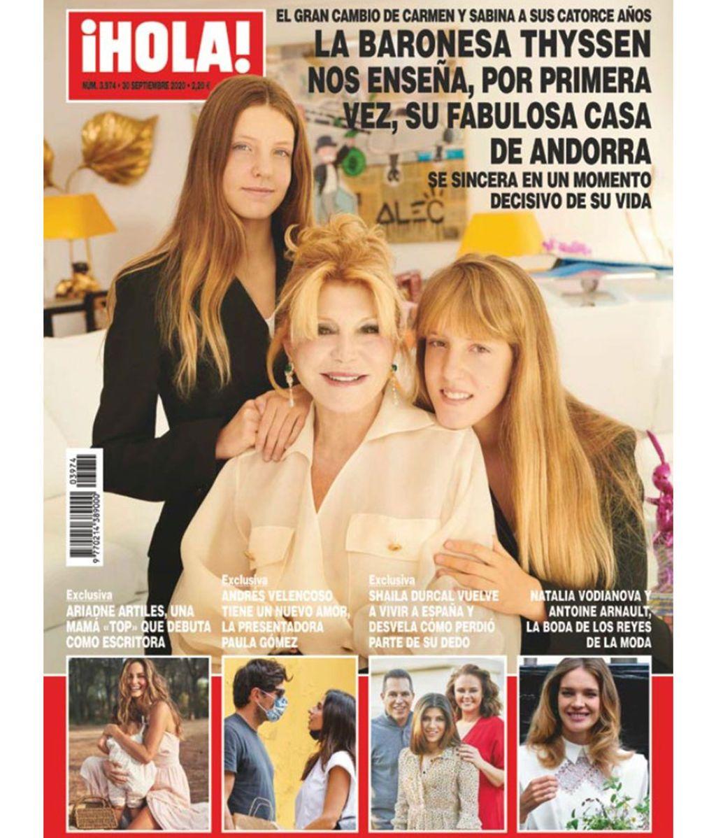 Shaila Durcal regresa a España y cuenta qué es lo que ocurrió con su dedo