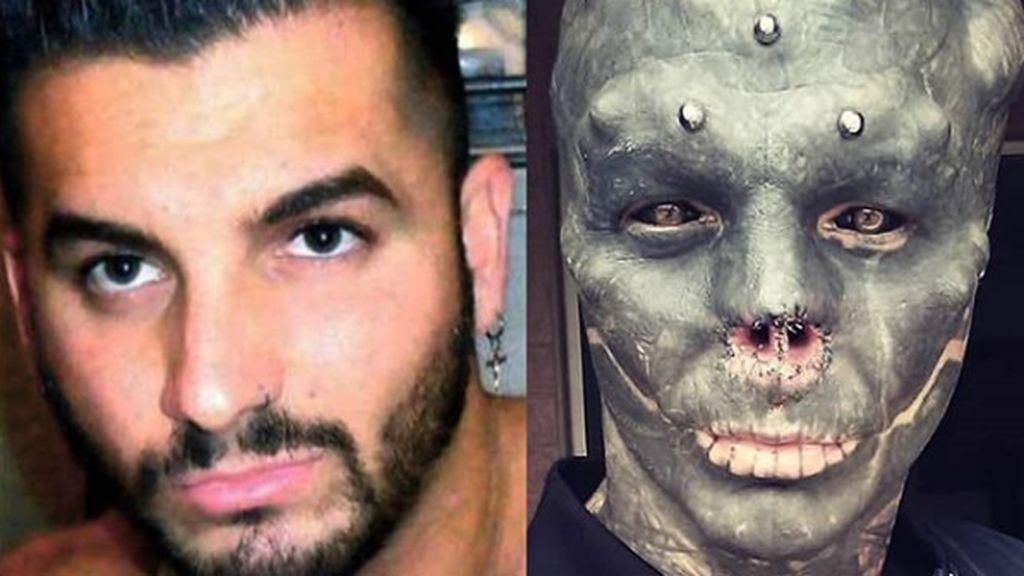 Un hombre se opera para quitarse la nariz y partirse la lengua en dos para parecer un alienígena