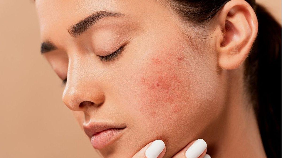 La niacinamida, el producto estrella para evitar las rojeces producidas por el roce de la mascarilla