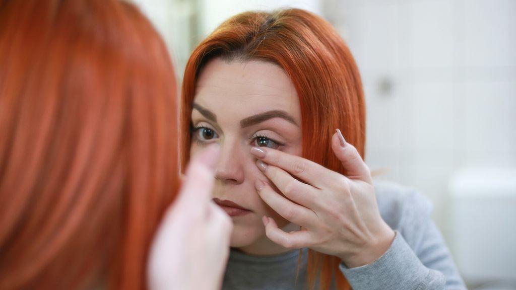 Acanthamoeba, una enfermedad rara que penetra en la córnea del ojo.