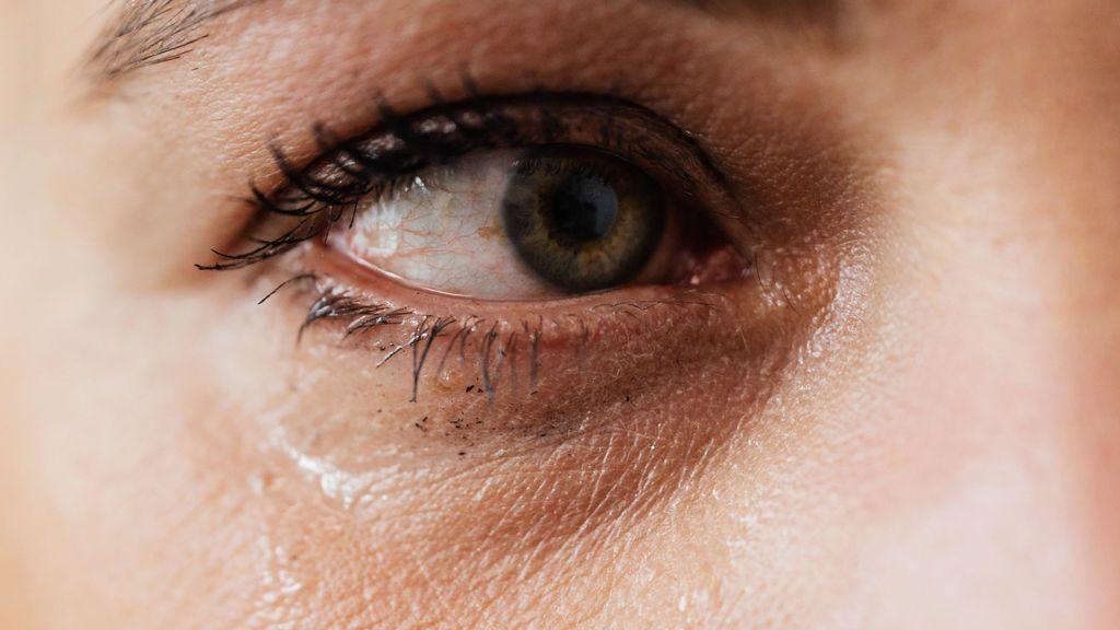 No, no tienes los ojos rojos por el ordenador, podrías tener coronavirus: La conjuntivitis, posible nuevo síntoma