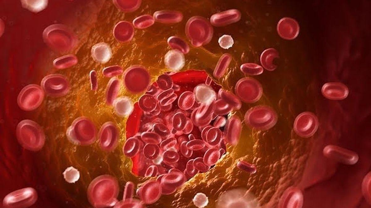 Un estudio encuentra alto riesgo de trombosis venosa profunda y embolia pulmonar en pacientes con covid.19