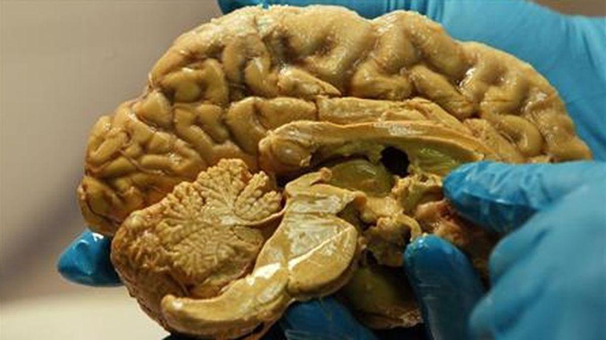 Científicos descubren dónde se alojan los pensamientos indeseables en el cerebro