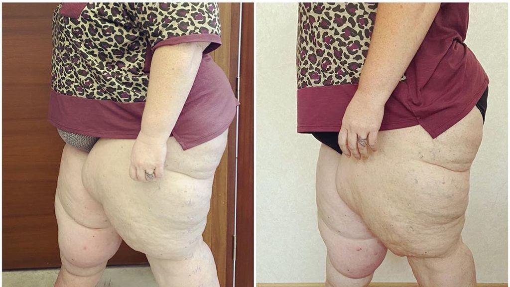 Itziar Castro muestra el antes y después de la dieta y el drenaje