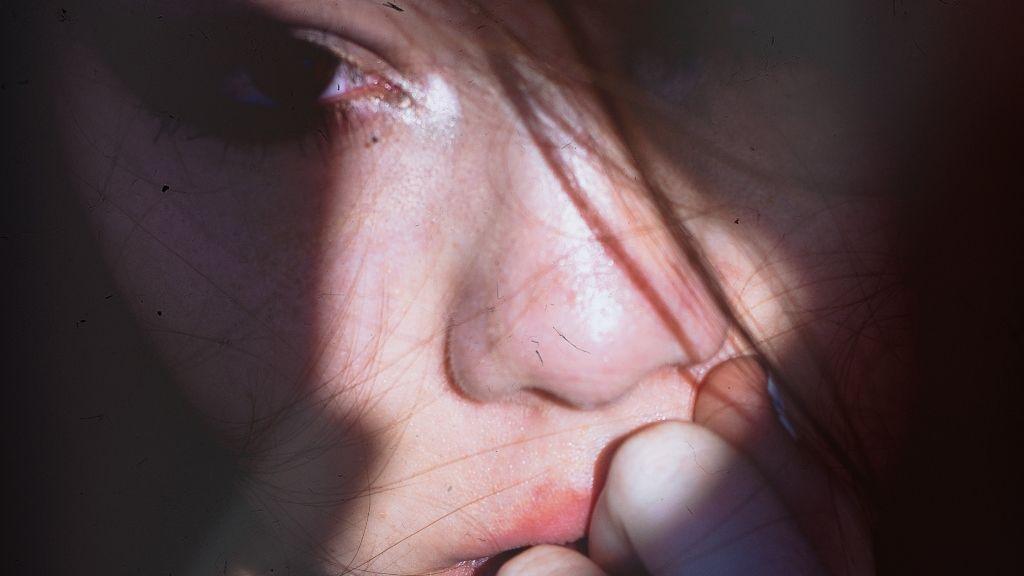 La esquizofrenia nos aísla porque ni nosotros mismos entendemos lo que vemos y oímos