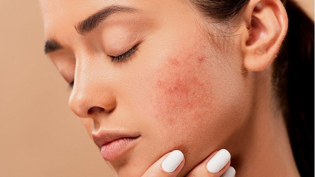 Granos y otras lesiones en la piel de la cara:  consejos para prevenirlos y tratarlos