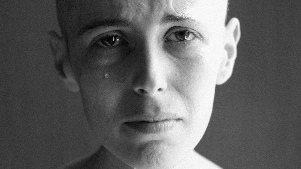 """Una joven con cáncer cuenta la realidad de su enfermedad: """"Creo que es importante hablar claro"""""""