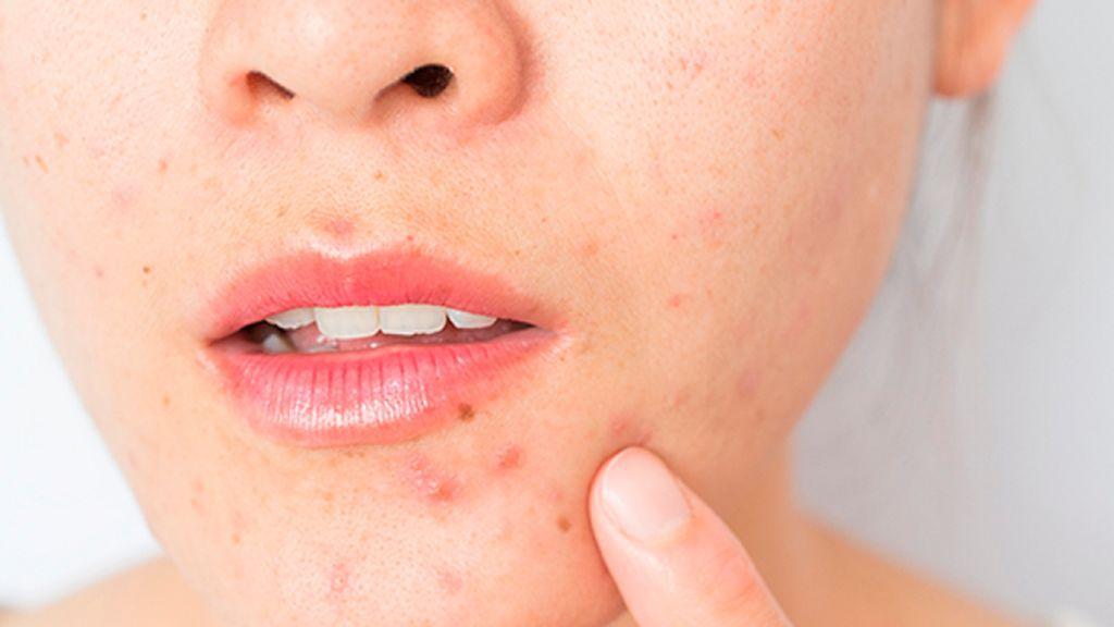 Los efectos de las mascarillas en nuestra piel