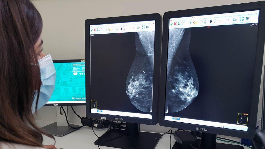Cáncer de mama: investigación e innovación para curar el 100% de los casos