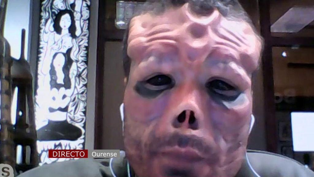 Se opera la cara para parecerse a Red Skull