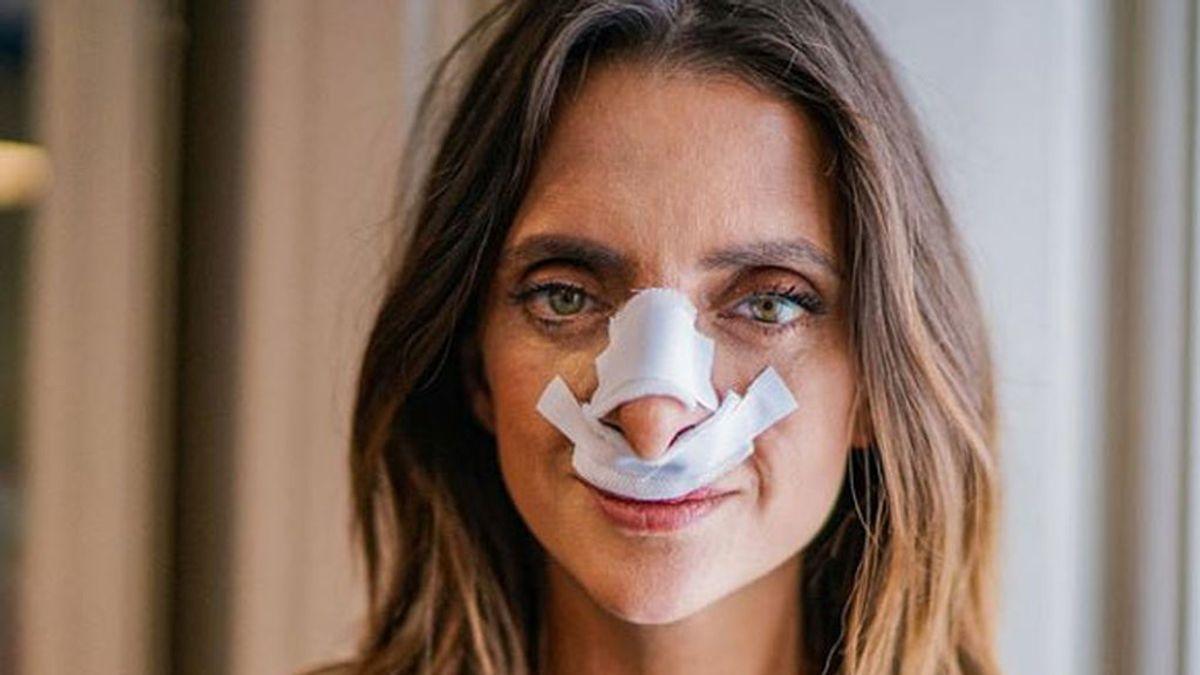 Macarena Gómez enseña el resultado de su operación de nariz