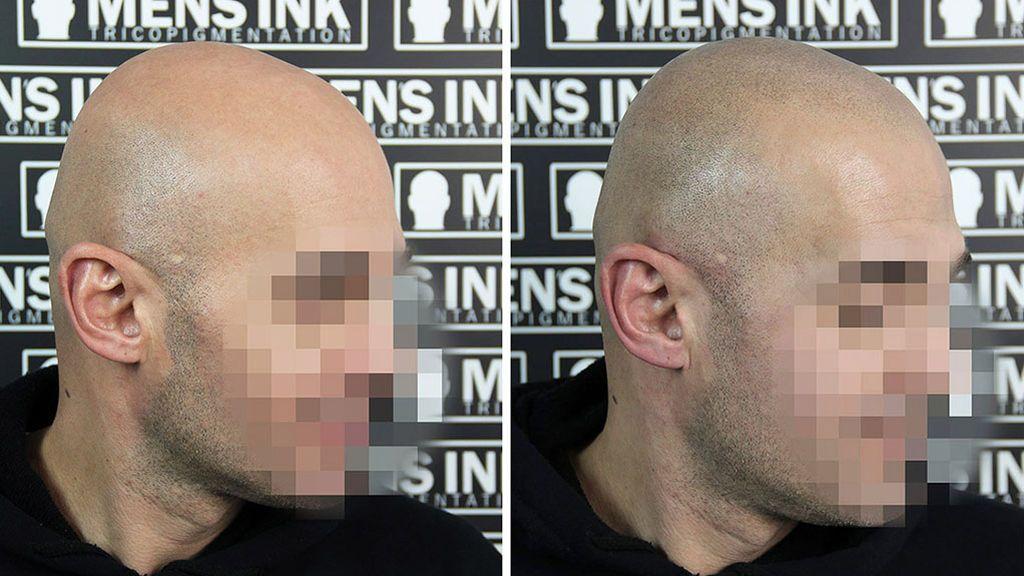 Antes y después Men's Ink