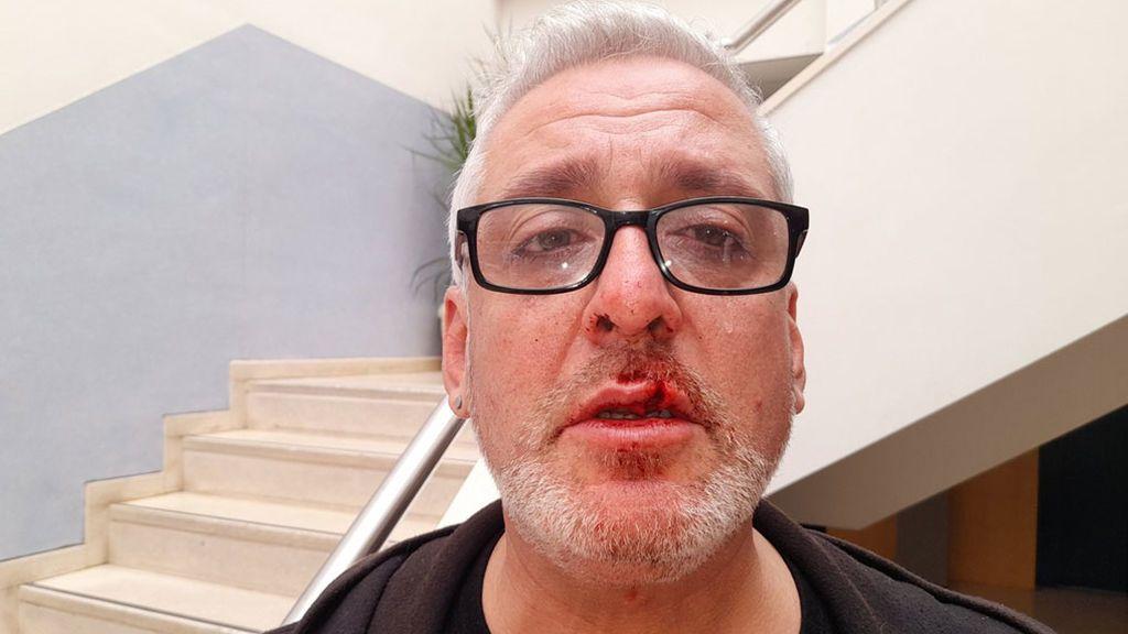 Eduardo Bandera, agredido por bajarse un momento la mascarilla