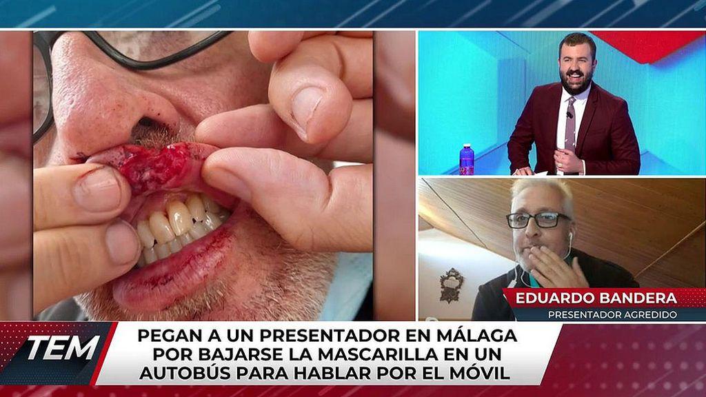 Eduardo Bandera, el presentador agredido en Málaga