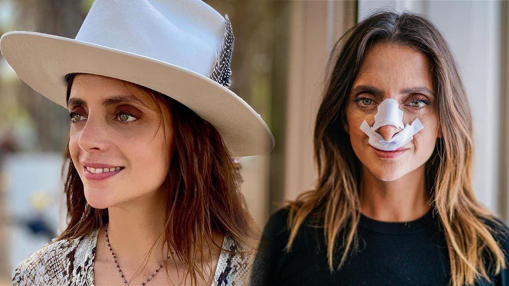 """Macarena Gómez muestra el resultado de su agrandamiento de nariz y resuelve el misterio: """"No ha sido una decisión fácil"""""""