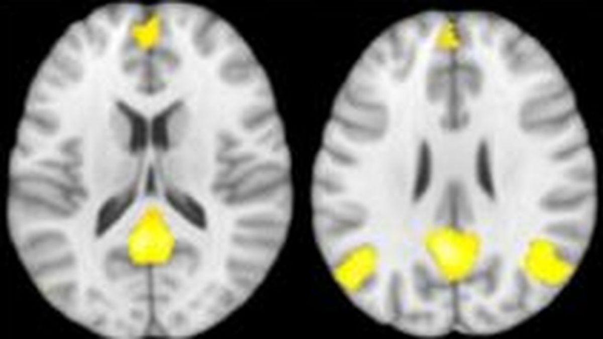 Un estudio de la Universidad de Granda revela cómo funciona el cerebro de los maltratado-res cuando toman decisiones en situaciones de violencia de género
