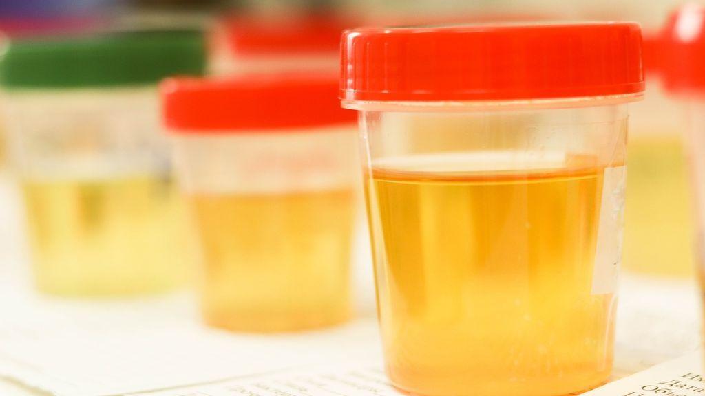 ¿Qué problemas esconde la hematuria o sangre en la orina?