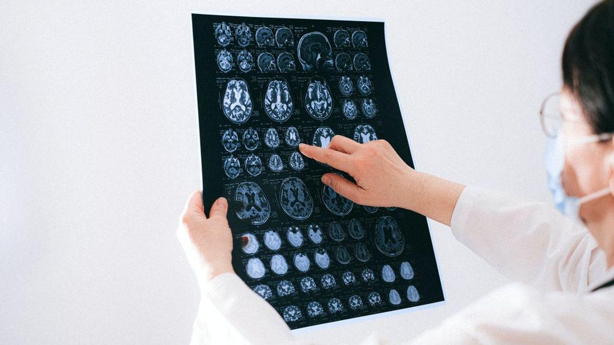 Confusión, delirios o envejecimiento precoz: todo lo que provoca el coronavirus en nuestro cerebro