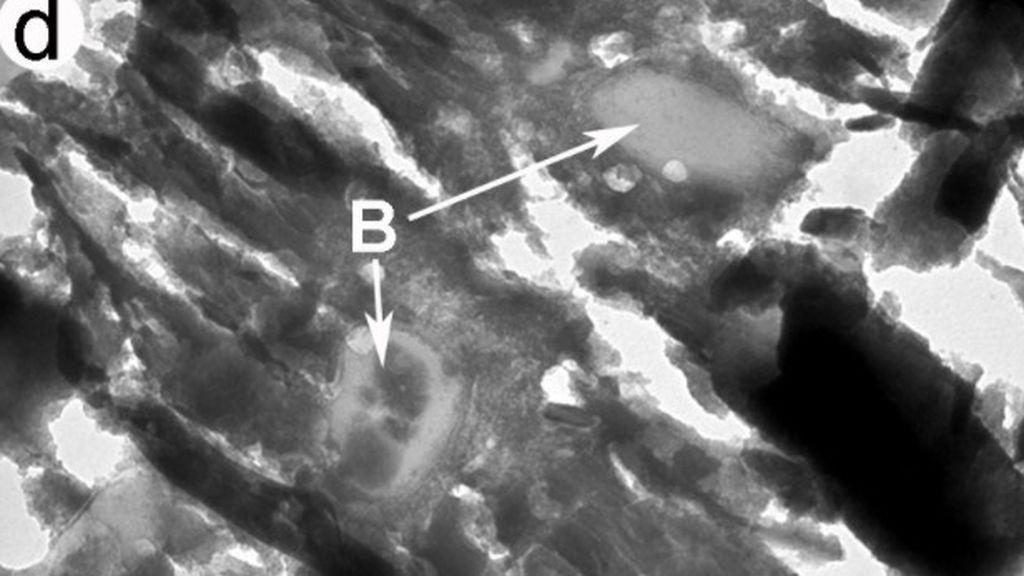 bacteria tres