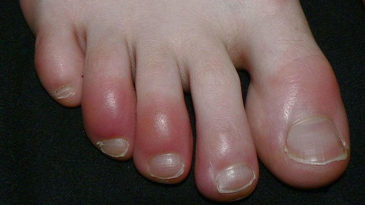 El síndrome de 'dedos congelados', un nuevo síntoma del coronavirus
