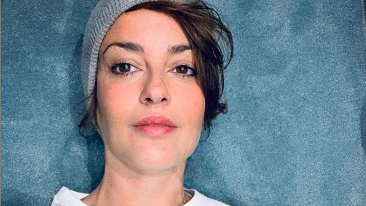 La cantante Vega de 'Operación Triunfo' visibiliza la alopecia como secuela del coronavirus