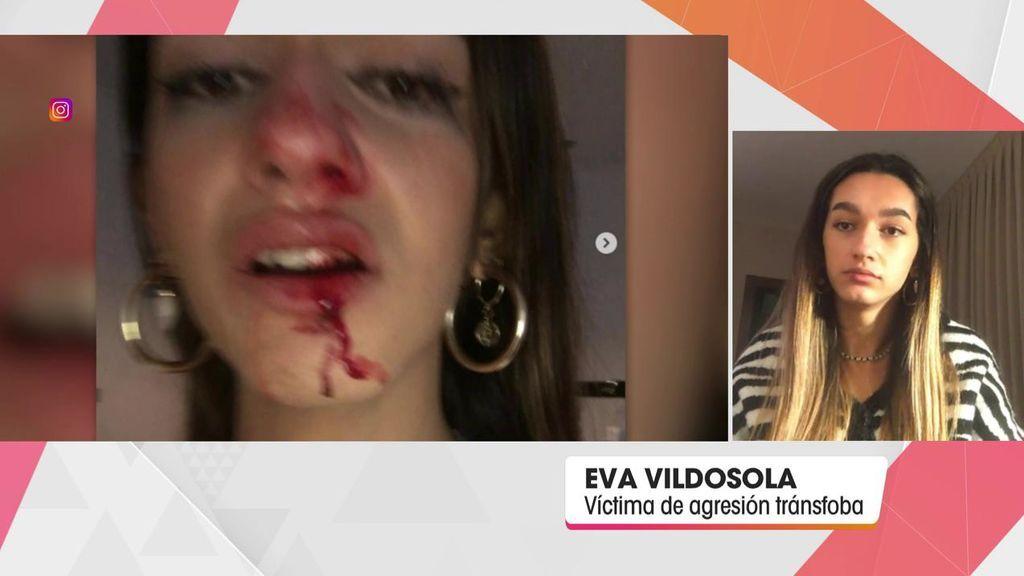 Eva, la joven transexual agredida en Barcelona:
